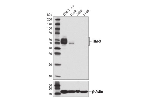 Western blot analysis of extracts from primary human CD4+ T cells and various cell lines using TIM-3 (D5D5R™) XP<sup>®</sup> Rabbit mAb (upper) or β-Actin (D6A8) Rabbit mAb #8457 (lower). CD4+ T cells were purified from human blood and stimulated for 9 days using beads coated with CD3 and CD28 antibodies in the presence of Human Interleukin-2 (hIL-2) #8907 (6.7 ng/ml).