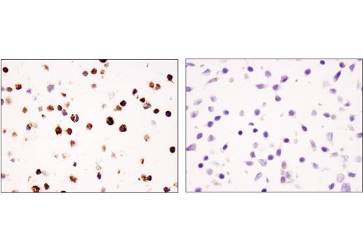 Immunohistochemical analysis of paraffin-embedded cell pellets, primary CD4+ T cells (left) and HT-29 cells (right), using TIM-3 (D5D5R™) XP<sup>®</sup> Rabbit mAb. CD4+ T cells were purified from human blood and stimulated for 7 days using beads coated with CD3 and CD28 antibodies in the presence of Human Interleukin-2 (hIL-2) #8907 (6.7 ng/ml).