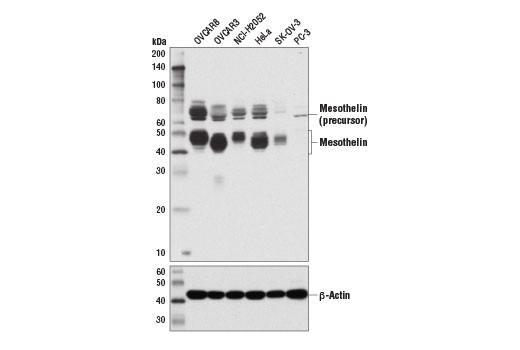 Western blot analysis of extracts from various cell lines using Mesothelin (D4X7M) Rabbit mAb (upper) and β-Actin (D6A8) Rabbit mAb #8457 (lower).