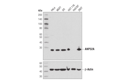 Western blot analysis of extracts from various cell lines using ANP32A (D7Z5U) Rabbit mAb (upper) or β-Actin (D6A8) Rabbit mAb #8457 (lower).