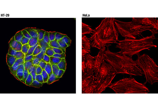Confocal immunofluorescent analysis of HT-29 (left) and HeLa (right) cells using EpCAM (D4K8R) XP<sup>®</sup> Rabbit mAb (green). Actin filaments were labeled with DyLight™ 554 Phalloidin #13054 (red). Blue pseudocolor = DRAQ5<sup>®</sup> #4084 (fluorescent DNA dye). Note that EpCAM (D4K8R) XP<sup>®</sup> Rabbit mAb has been shown to detect its target protein on live, fixed, and fixed/permeabilized cells.