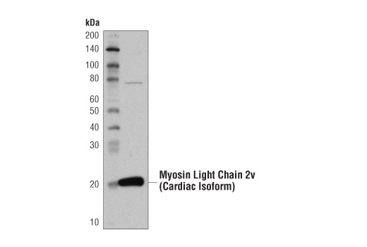 Western Blotting Image 3: Mouse Heart Tissue Control Extracts