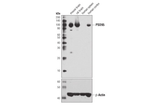 Western blot analysis of extracts from various tissues using PSD95 (7E3) Mouse mAb (upper) and β-Actin (D6A8) Rabbit mAb #8457 (lower).