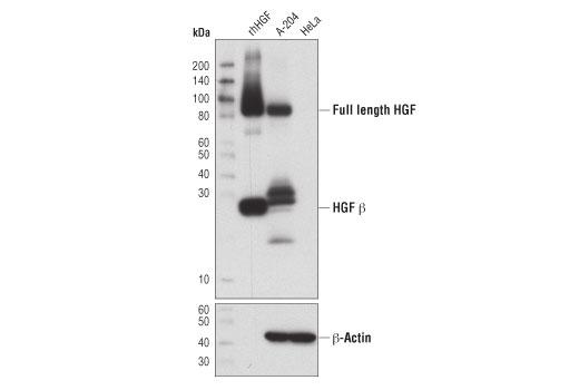 Human HGF Beta Subunit