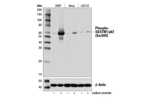 Polyclonal Antibody - Phospho-SQSTM1/p62 (Ser349) Antibody - Western Blotting, UniProt ID Q13501, Entrez ID 8878 #95697 - Autophagy