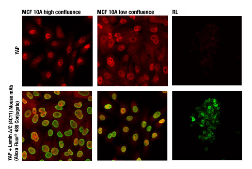Confocal immunofluorescent analysis of high confluence MCF 10A (left), low confluence MCF 10A (center), and YAP negative RL-7 cells (right) using YAP (D8H1X) XP<sup>®</sup> Rabbit mAb (Alexa Fluor® 647 Conjugate) (red). Green in lower images = Lamin A/C (4C11) Mouse mAb (Alexa Fluor® 488 Conjugate) #8617. Increased nuclear localization of YAP protein is seen in low confluence (proliferating) cells.