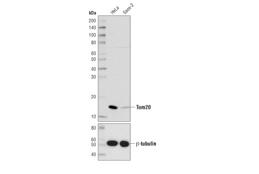 Western blot analysis of extracts from HeLa and Saos-2 cells using Tom20 (D8T4N) Rabbit mAb (upper) and β-Tubulin (D2N5G) Rabbit mAb #15115 (lower).