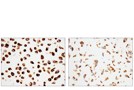 Immunohistochemical analysis of paraffin-embedded HeLa cell pellet (left, high-expressing) or Saos-2 cell pellet (right, low-expressing) using Tom20 (D8T4N) Rabbit mAb.