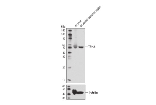 Western blot analysis of extracts from rat brain and rat ventral tegmental region using TPH2 (D3E5I) XP<sup>®</sup> Rabbit mAb (upper) and β-Actin (D6A8) Rabbit mAb #8457 (lower).