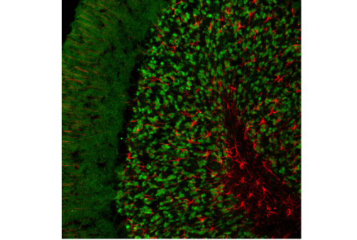 Confocal immunofluorescent analysis of normal rat brain using SV2A (D1L8S) Rabbit mAb (green) and GFAP (GA5) Mouse mAb #3670 (red).