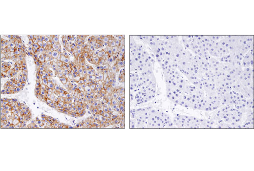 Immunohistochemical analysis of paraffin-embedded human hepatocellular carcinoma using Flotillin-1 (D2V7J) XP<sup>®</sup> Rabbit mAb in the presence of control peptide (left) or antigen-specific peptide (right).