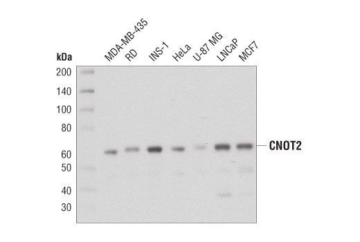 Western blot analysis of extracts from various cell lines using CNOT2 (D8Z8P) Rabbit mAb.