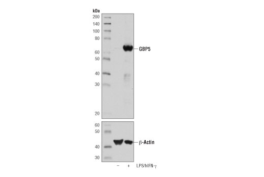 Monoclonal Antibody - GBP5 (D3A5O) Rabbit mAb - Immunoprecipitation, Western Blotting, UniProt ID Q96PP8, Entrez ID 115362 #67798 - Immunology and Inflammation