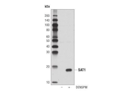 Western blot analysis of extracts from SK-MEL-28 cells untreated (-) or treated with N1, N11-diethylnorspermine (DENSPM) (10 μM, 24 hr; +), using SAT1 (D1T7M) Rabbit mAb.