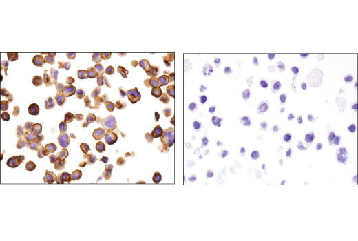 Image 25: Coronavirus Host Cell Attachment and Entry Antibody Sampler Kit