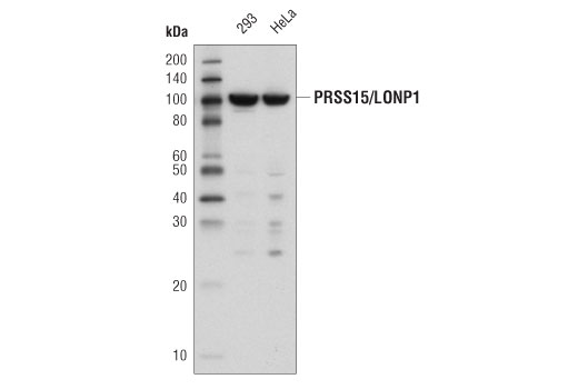 Western blot analysis of extracts from 293 and HeLa cells using PRSS15/LONP1 (D7L8M) Rabbit mAb.