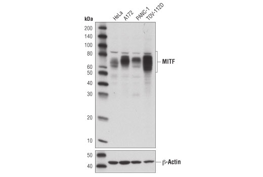 Western blot analysis of extracts from various cell lines using MITF (D3B4T) Rabbit mAb (upper) and β-Actin (D6A8) Rabbit mAb #8457 (lower).