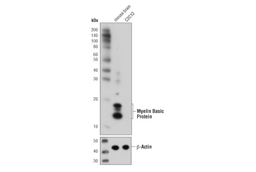 Western blot analysis of extracts from mouse brain and C2C12 cells using Myelin Basic Protein (D8X4Q) XP<sup>®</sup> Rabbit mAb (upper) or β-Actin (D6A8) Rabbit mAb #8457 (lower).