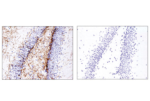Immunohistochemical analysis of a paraffin-embedded mouse brain using Myelin Basic Protein (D8X4Q) XP<sup>®</sup> Rabbit mAb in the presence of control peptide (left) or antigen-specific peptide (right).