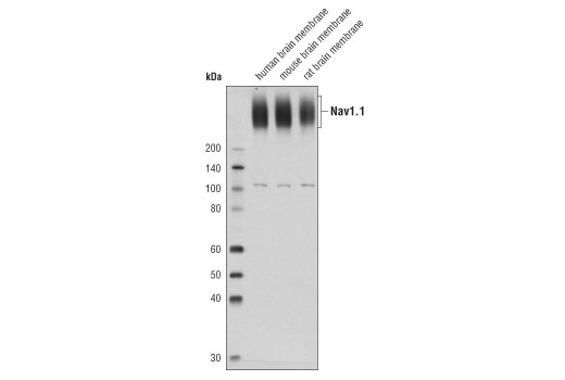 Western blot analysis of membrane extracts from human, mouse and rat brain using Nav1.1 (D8X1Y) Rabbit mAb.