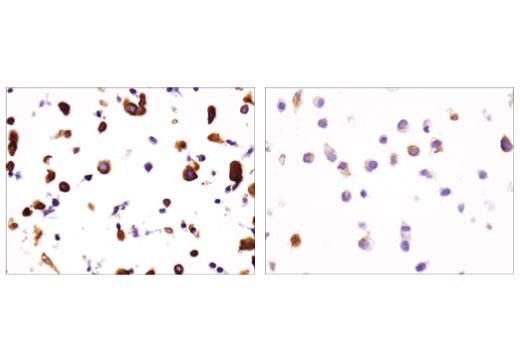 Monoclonal Antibody - DCLK1/DCAMKL1 (D2U3L) XP® Rabbit mAb, UniProt ID O15075, Entrez ID 9201 #62257 - Primary Antibodies