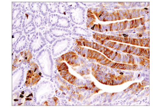Immunohistochemical analysis of paraffin-embedded Apc (Min/+) mouse intestinal adenoma using DCLK1/DCAMKL1 (D2U3L) XP<sup>® </sup>Rabbit mAb.