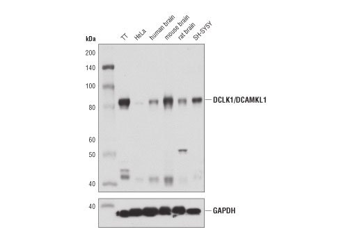 Western blot analysis of extracts from various cell lines and tissues using DCLK1/DCAMKL1 (D2U3L) XP<sup>® </sup>Rabbit</p><p>mAb (upper) or GAPDH (D16H11) XP® Rabbit mAb #5174 (lower). As expected, HeLa cells have extremely low expression of DCLK1/DCAMKL1.