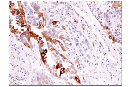 Immunohistochemical analysis of paraffin-embedded human lung carcinoma using DCLK1/DCAMKL1 (D2U3L) XP<sup>® </sup>Rabbit mAb.