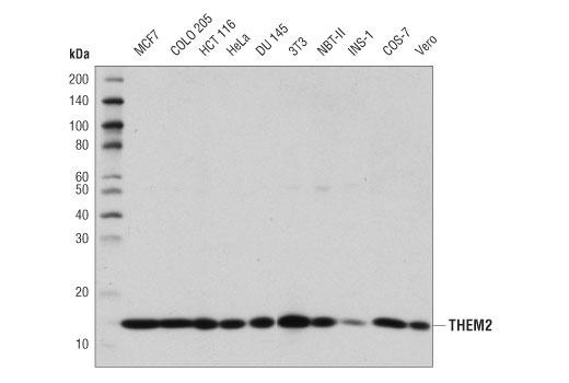 Polyclonal Antibody - THEM2 Antibody - Immunoprecipitation, Western Blotting, UniProt ID Q9NPJ3, Entrez ID 55856 #42713 - Metabolism