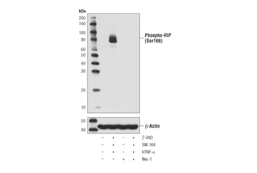 Western blot analysis of HT-29 cells, untreated (-) or treated with combinations of the following treatments as indicated: Z-VAD (20 μM, added 30 min prior to other compounds; +), human TNF-α (hTNF-α, 20 ng/ml, 7 hr; +), SM-164 (100 nM, 7 hr; +), and necrostatin-1 (Nec-1, 50 μM, 7 hr; +), using Phospho-RIP (Ser166) (D1L3S) Rabbit mAb (upper) or β-Actin (D6A8) Rabbit mAb #8457 (lower).