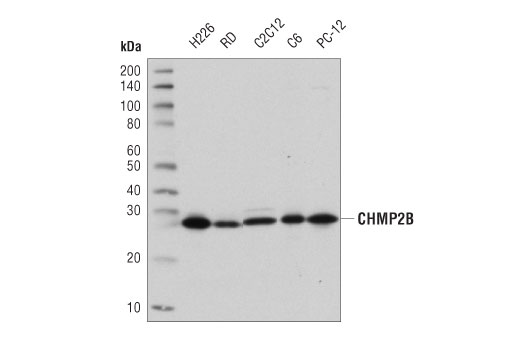 Western blot analysis of extracts from various cell lines using CHMP2B (D4G3K) Rabbit mAb.