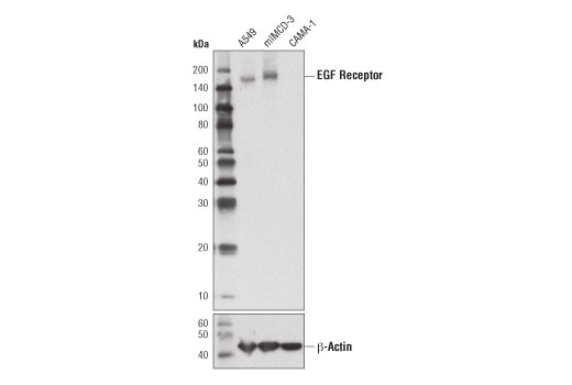 Western blot analysis of extracts from A549, mIMCD-3, and CAMA-1 cells using EGF Receptor (D1D4J) XP<sup>®</sup> Rabbit mAb (Neutralizing) (upper), or β-Actin (D6A8) Rabbit mAb #8457 (lower).