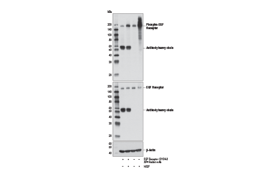 Western blot analysis of extracts from serum-starved A549 cells that were pre-incubated (1 hr, 5 μg/ml) with EGF Receptor (D1D4J) XP<sup>®</sup> Rabbit mAb (Neutralizing) (+), or vehicle control (-), and subsequently stimulated with hEGF #8916 (15 min, 100 ng/ml; +), using Phospho-EGF Receptor (Tyr1068) (D7A5) XP<sup>®</sup> Rabbit mAb #3777 (upper), EGF Receptor (D1D4J) XP<sup>®</sup> Rabbit mAb (Neutralizing) (middle), or β-actin (D6A8) Rabbit mAb #8457 (lower).