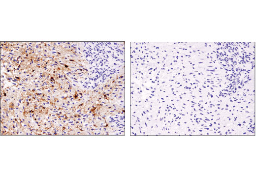 Immunohistochemical analysis of paraffin-embedded human glioblastoma using EGF Receptor vIII (D6T2Q) XP<sup>®</sup> Rabbit mAb in the presence of control peptide (left) and antigen-specific peptide (right).