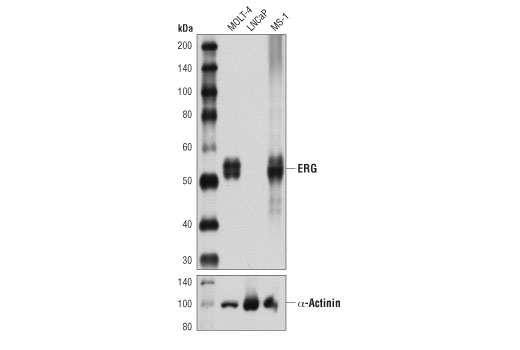 Western blot analysis of extracts from MOLT-4, LNCaP, and MS-1 cell lines using ERG (A7L1G) Rabbit mAb. As expected LNCaP cells are negative for ERG expression.