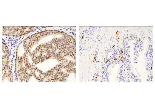 Immunohistochemical analysis of paraffin-embedded human prostate adenocarcinoma (two different cases) using ERG (A7L1G) Rabbit mAb.
