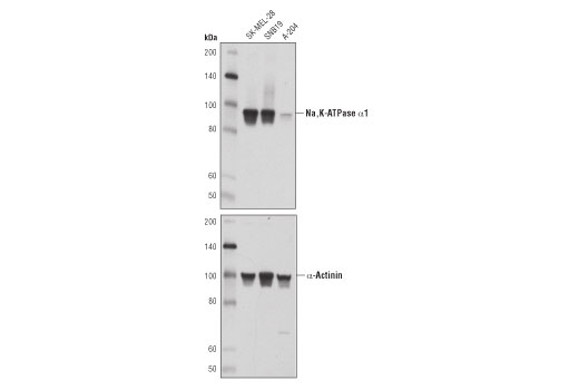 Western Blotting Image 1: Na,K-ATPase α1 (D4Y7E) Rabbit mAb