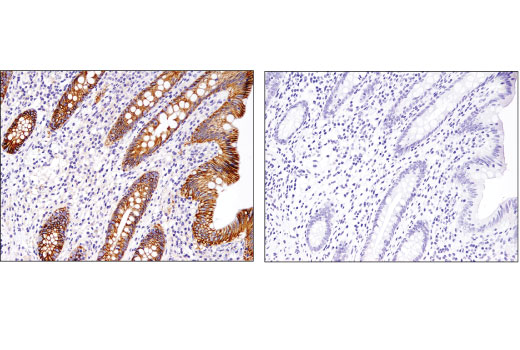 Immunohistochemical analysis of paraffin-embedded human appendix using Na,K-ATPase α1 (D4Y7E) Rabbit mAb in the presence of control peptide (left) or antigen-specific peptide (right).