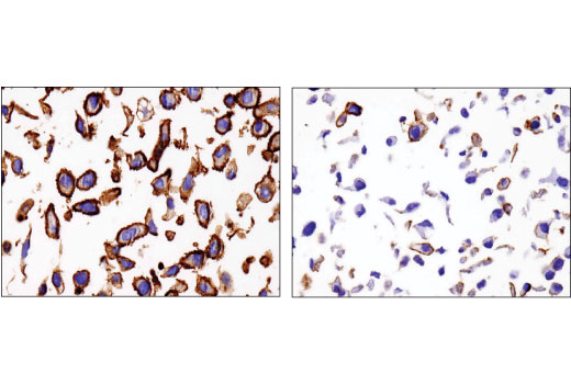 Immunohistochemical analysis of paraffin-embedded SK-MEL-28 (left) and A-204 (right) cell pellets using Na,K-ATPase α1 (D4Y7E) Rabbit mAb.