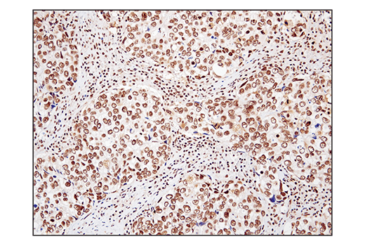Immunohistochemical analysis of paraffin-embedded human squamous cell lung carcinoma using SS18 (D6I4Z) Rabbit mAb.