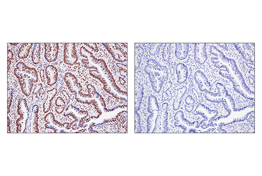 Immunohistochemical analysis of paraffin-embedded human colon carcinoma using SS18 (D6I4Z) Rabbit mAb (left) compared to concentration matched Rabbit (DA1E) mAb IgG XP® Isotype Control #3900 (right).