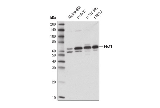 Western blot analysis of extracts from human cortex, mouse brain, and rat brain using FEZ1 (D9R8Q) Rabbit mAb.