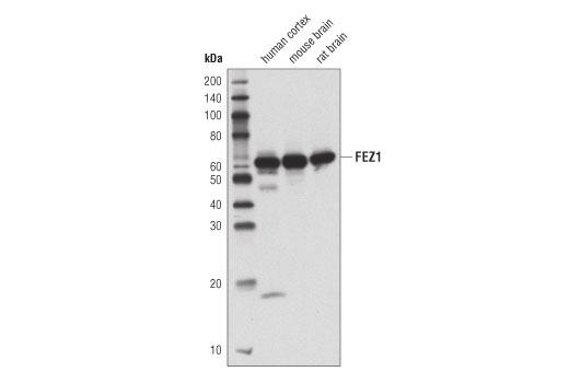 Monoclonal Antibody - FEZ1 (D9R8Q) Rabbit mAb - Immunoprecipitation, Western Blotting, UniProt ID Q99689, Entrez ID 9638 #42480, Autophagy Signaling