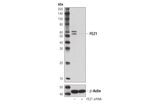 Western blot analysis of extracts from Malme-3M cells, transfected with 100 nM SignalSilence® Control siRNA (Unconjugated) #6568 (-) or SignalSilence<sup>®</sup> FEZ1 siRNA I #72660. (+), using FEZ1 (D9R8Q) Rabbit mAb (upper) or β-Actin (D6A8) Rabbit mAb #8457 (lower). The FEZ1 (D9R8Q) Rabbit mAb confirms silencing of FEZ1 expression, while the β-Actin (D6A8) Rabbit mAb is used as a loading control.