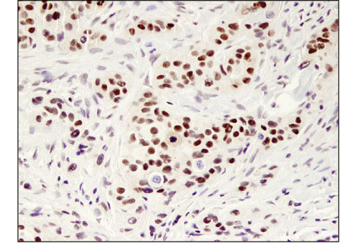 Immunohistochemical analysis of paraffin-embedded human breast carcinoma using MYST2 (D4N3F) Rabbit mAb.