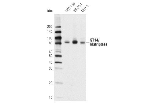Polyclonal Antibody - ST14/Matriptase Antibody - Western Blotting, UniProt ID Q9Y5Y6, Entrez ID 6768 #19271, St14