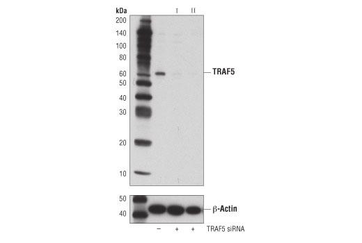 Monoclonal Antibody - TRAF5 (D3E2R) Rabbit mAb - Western Blotting, UniProt ID O00463, Entrez ID 7188 #41658 - #41658