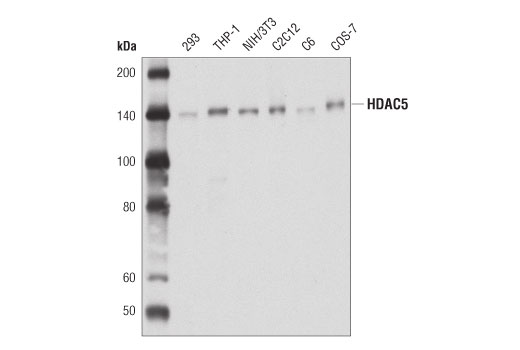 Western blot analysis of extracts from various cell lines using HDAC5 (D1J7V) Rabbit mAb.