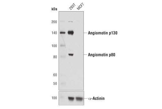 Western blot analysis of extracts from 293T and MCF7 cells, using Angiomotin (D2O4H) Rabbit mAb (upper) or α-Actinin (D6F6) XP<sup>®</sup> Rabbit mAb #6487 (lower).