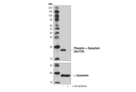 Western blot analysis of extracts from mouse brain, untreated (-) or λ phosphatase-treated (+), using Phospho-α-Synuclein (Ser129) (D1R1R) Rabbit mAb (upper) or α-Synuclein (D37A6) XP<sup>®</sup> Rabbit mAb #4179 (lower).